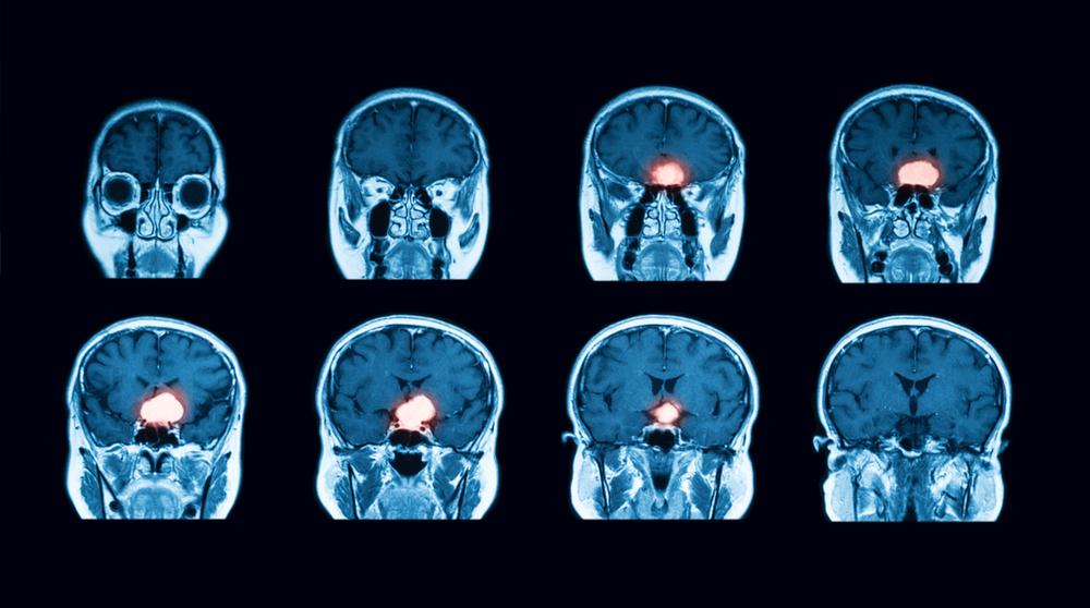 Brain Cancer: CyberKnife vs Whole Brain Radiation