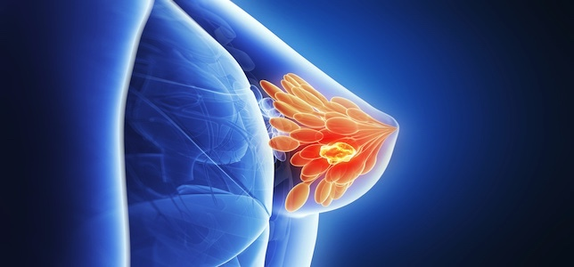 Study Finds Treating Ductal Carcinoma In Situ With Surgery & Radiotherapy Lowers Risk of Developing Breast Cancer Than Surgery Alone